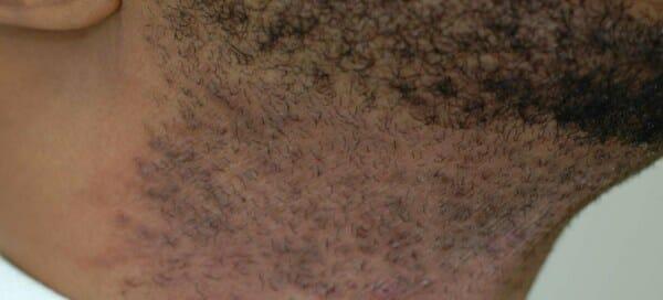 beard ingrown hair