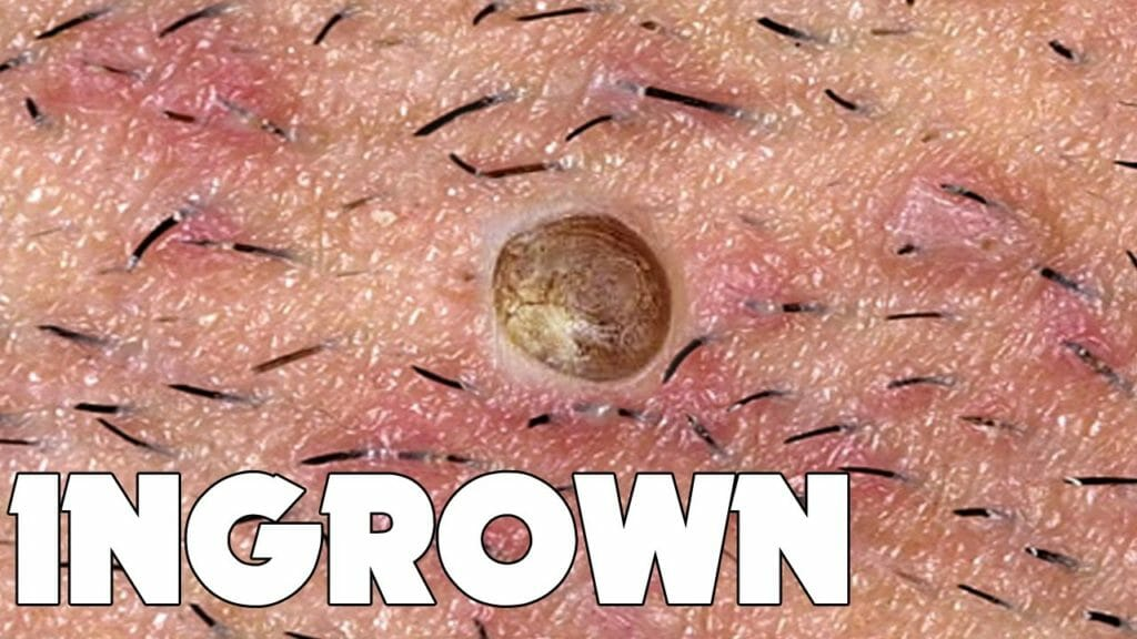 prevent ingrown hair