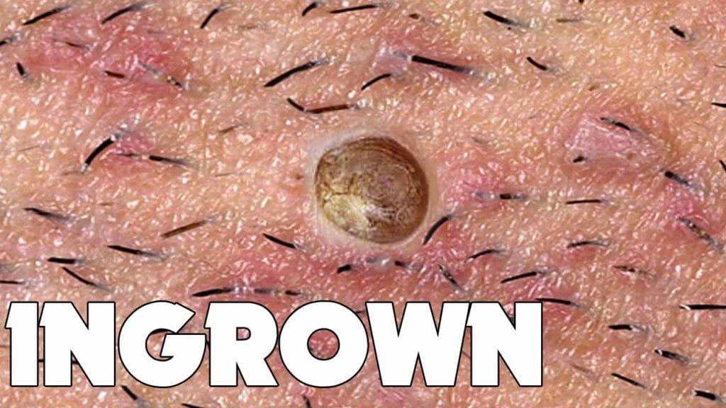 prevent ingrown hair