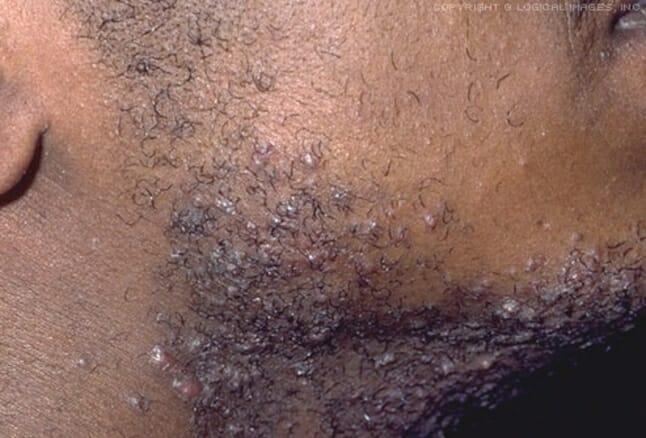 How can black men avoid razor bumps